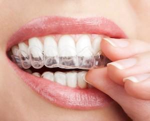 ottawa-downtown-dentist-invisalign-1.jpg